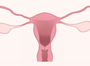 Gynecological Health